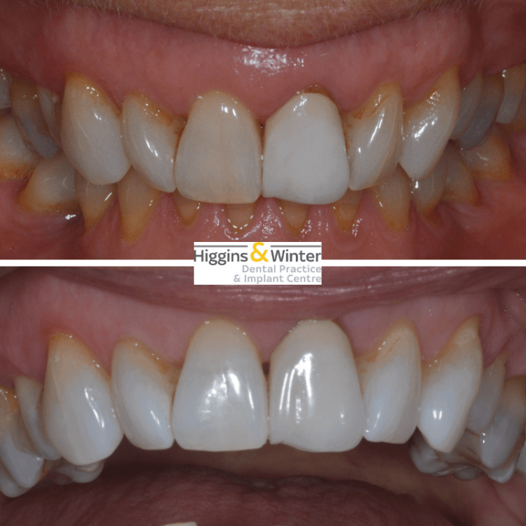 Routine & Cosmetic Dentistry